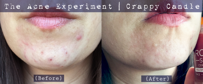 Perioral Dermatitis Rosehip Oil :: The Acne Experiment