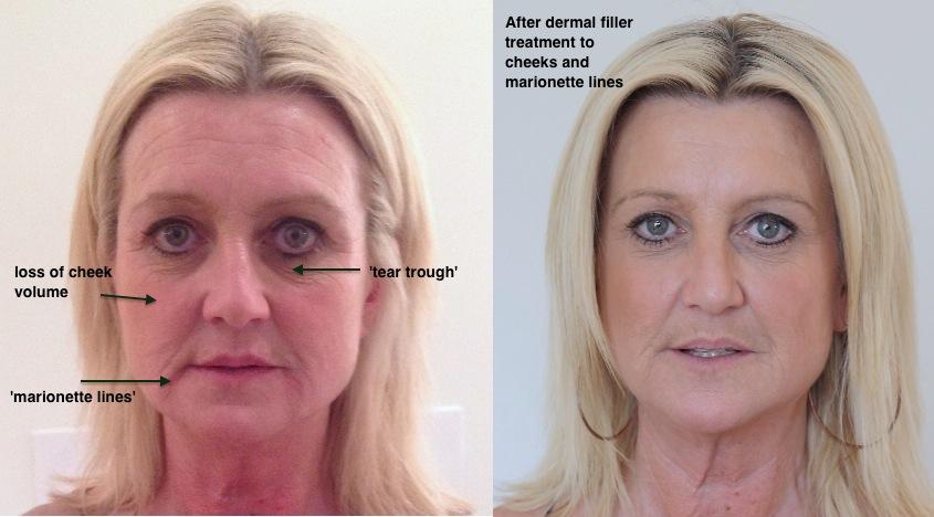 Line Under Eye Filler: Q&A: HA Filler For Under Eye Injections