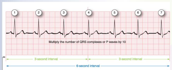 Traumagency: Count Irregular Rhythm HEART Rate