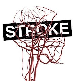 Patofisiologi penyakit stroke hemoragik, Latar Belakang Penyakit Stroke Hemoragik, Penyakit Stroke Pada Kucing, Obat Stroke Com, Cara Pengobatan Stroke Secara Medis, Obat Tradisional Untuk Mengatasi Stroke, Woc Penyakit Stroke, Cara Menyembuhkan Penyakit Stroke Akut, Penyakit Stroke Wikipedia, Mengobati Stroke Dengan Akupunktur, Obat Penyakit Gejala Stroke