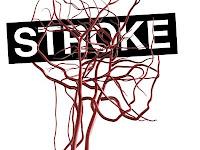 Pengobatan Medis Stroke Ringan