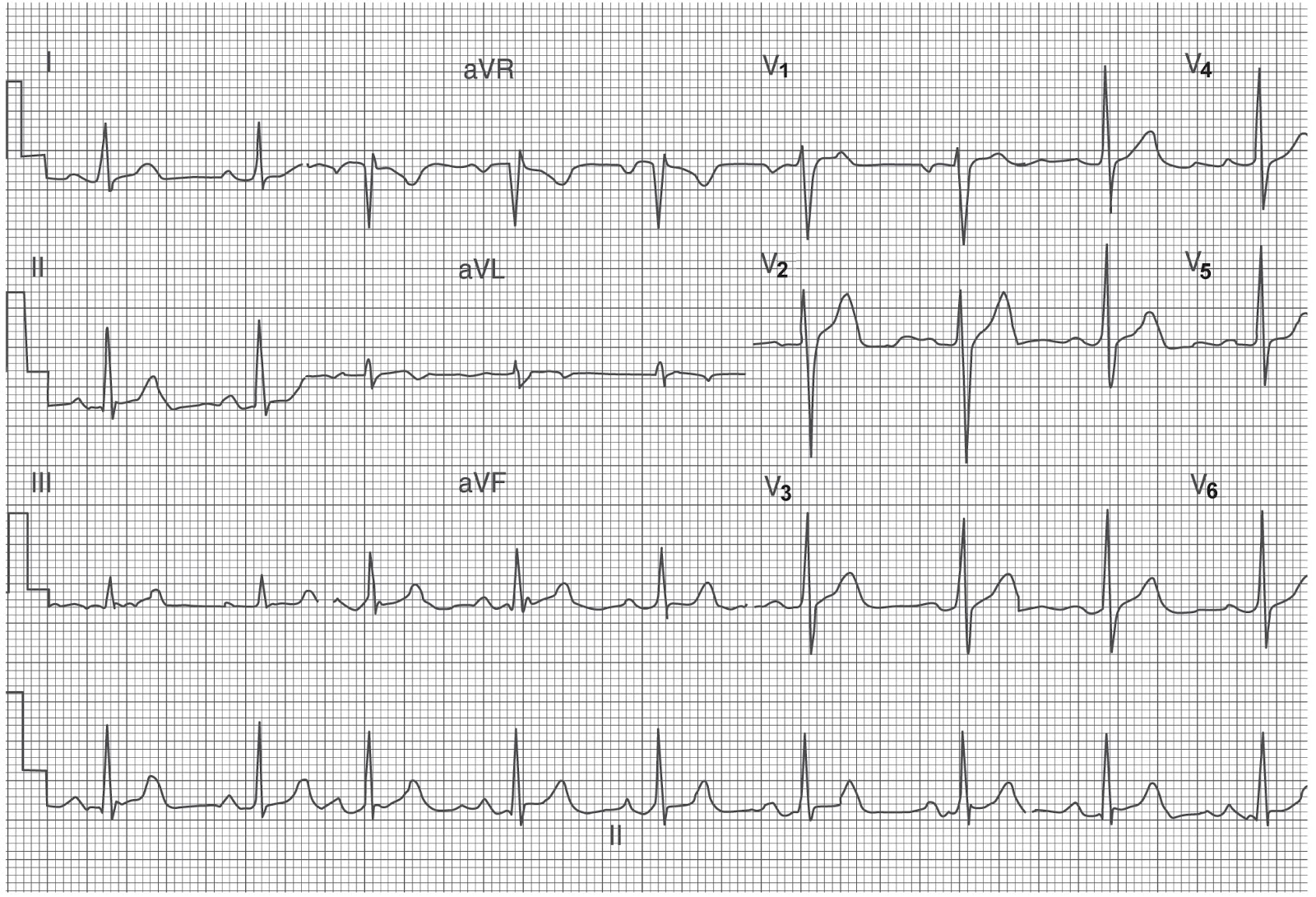 Study Medical Photos: Understanding A Normal ECG - Details about The Waves And Intervals.
