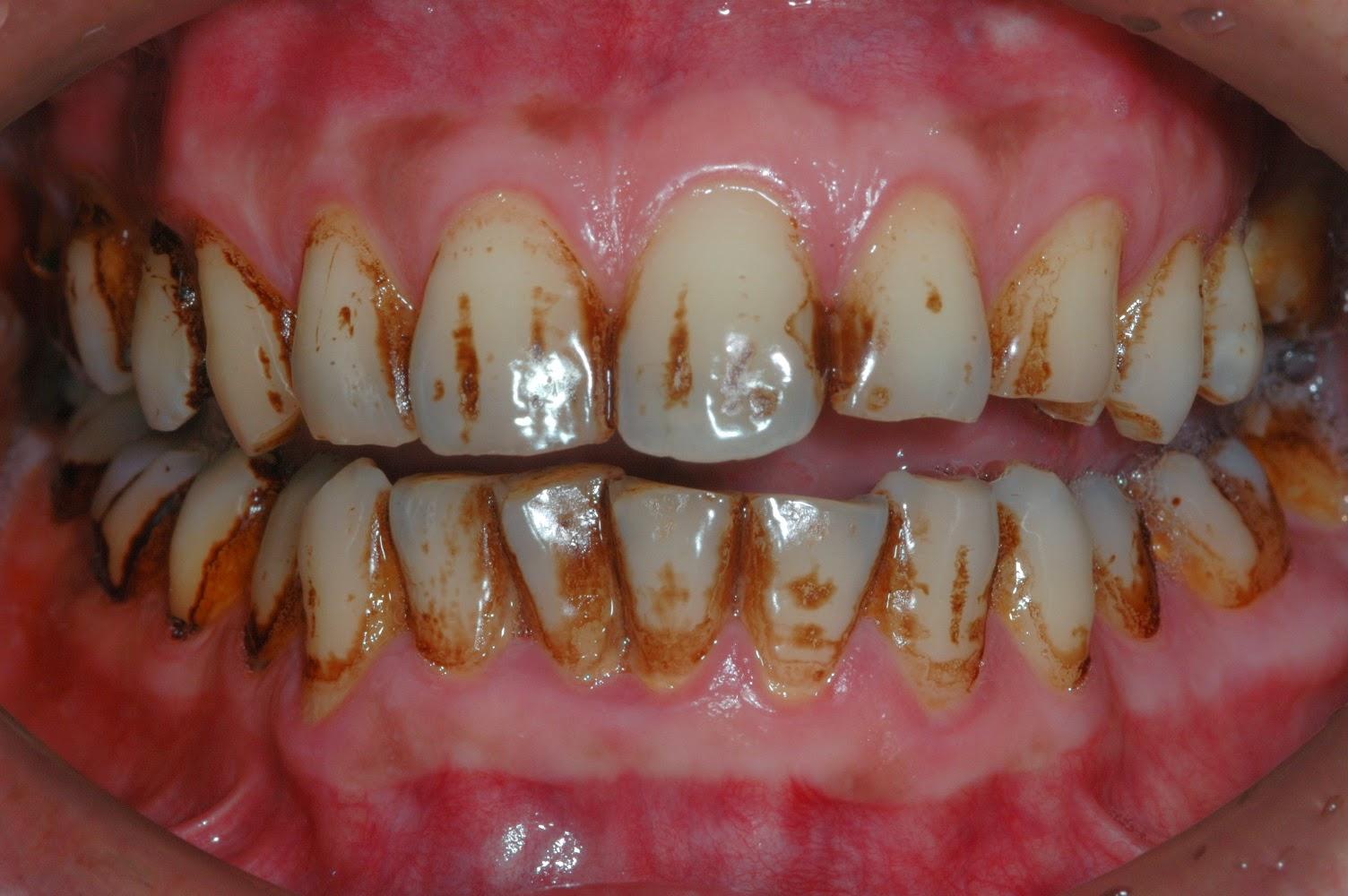 TONY牙醫隨寫: 牙齒美白會不會傷牙齒?