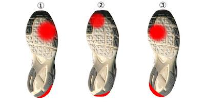 それでは、あなたの靴の裏はどこが減っていますか?