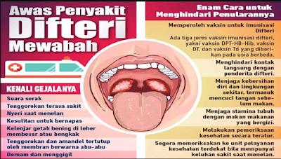 Cara Mengenali Gejala Penyakit Difteri
