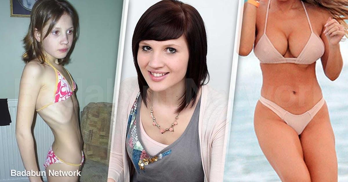 anorexia mujer cambios superar historia modelo famosa
