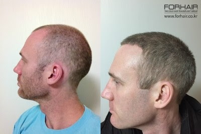 real before and after, before and after hair transplants, before and after korea, forhair korea