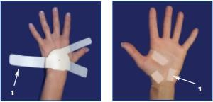 First step for wearing the Carpal Solution Brace