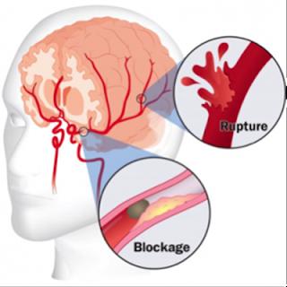 Cara Mengobati Stroke Secara Herbal, Obat Stroke Apotek, Obat Tradisional Untuk Sakit Stroke, Obat Nyeri Stroke, Obat Gjala Stroke, Obat Alami Bagi Penderita Stroke, Tanaman Mengobati Stroke, Cara Alami Mengobati Stroke Ringan, Lama Penyakit Stroke, Obat Stroke Ringan Ampuh, Obat Mujarab Penyakit Stroke Ringan, Cara Mengobati Penyakit Stroke Ringan Secara Alami, Pengobatan Alami Gejala Stroke, Terapi Penyakit Stroke Ringan, Cara Menyembuhkan Penyakit Stroke Dengan Cepat, Ramuan Obat Tradisional Untuk Stroke, Obat Alami Mengobati Gejala Stroke, Usia Penyakit Stroke, Pengobatan Alternatif Stroke Ringan, Penyakit Stroke Bisa Sembuh Total, Cara Mengatasi Stroke Sebelah Kiri, Ramuan Obat Stroke Ringan, Obat Untuk Stroke Hemoragik, Obat Untuk Stroke Iskemik, Penyakit Komplikasi Stroke