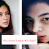 Angel Locsin's Black Eye Catches Netizens Attention, BF Neil Arce Reacts