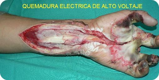 tipos de lesiones por quemaduras electricas
