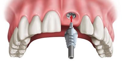 Kinh nghiệm trồng răng sứ bạn nên biết
