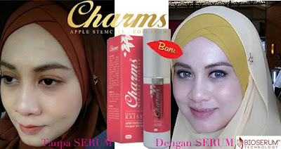 Image result for CHARMS KAISYA SERUM