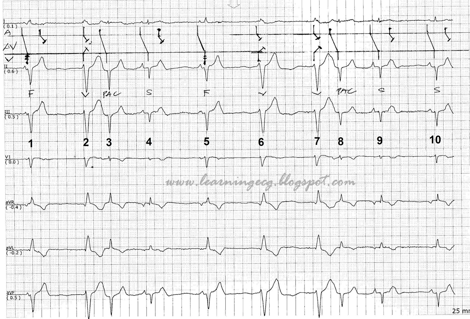 ECG Rhythms: Do we have the same ladder diagram?