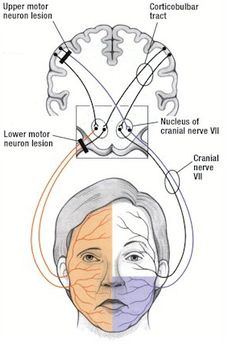 Treatment of Facial Paralysis