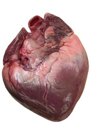 Tu médico te informa: Los ácidos grasos omega-3 mejoran la anatomía ...