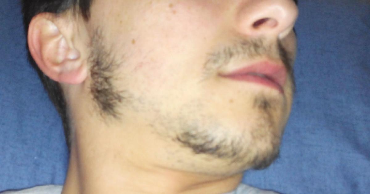 Homens com este tipo de barba têm o pénis pequeno