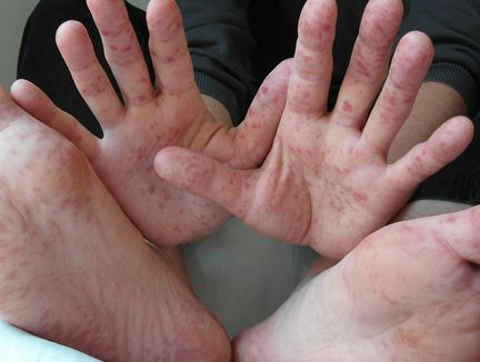 Can Adults Get Hand Foot And Mouth Disease