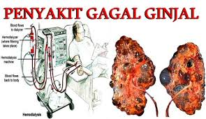 Asuhan Keperawatan (askep) pada pasien dengan batu ginjal