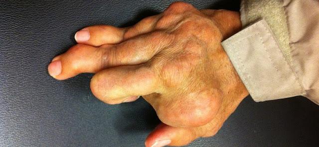 obat penyakit hiperurisemia