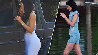 Supermodel Kylie Jenner before and after butt photos