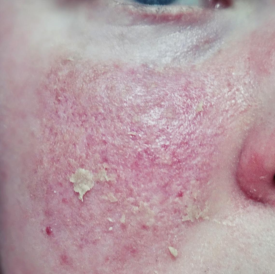 Łojotokowe zapalenie skóry | Kompendium wiedzy o Seborrheic dermatitis