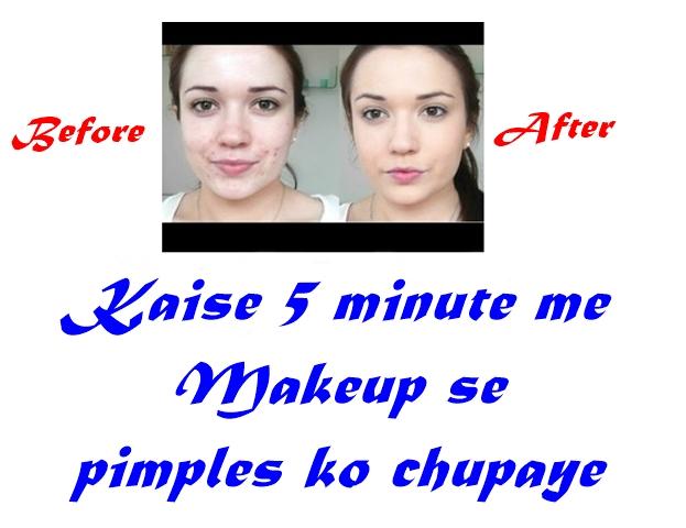 Kaise 5 minute me Makeup se pimples ko chupaye