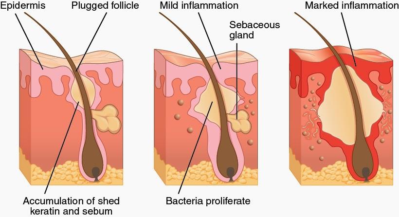 Tips For Acne Treatment Nodular Acne Treatment Your Alternatives