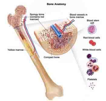 What is Bone Marrow Cancer?