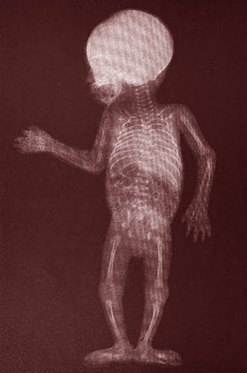 THE WHOLE WORLD ...Xray Of Childs Foot