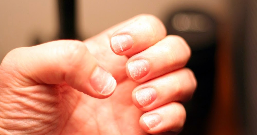 The Life Extension Blog Ridges In Your Nails Point To Larger