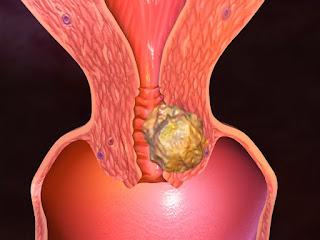 Pengobatan Tradisional Tumor Rahim