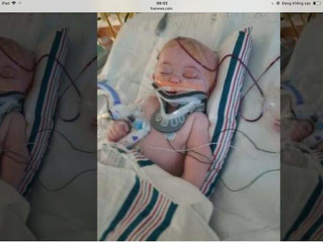 Một bé trai rơi từ giường xuống bị chấn thương não nặng