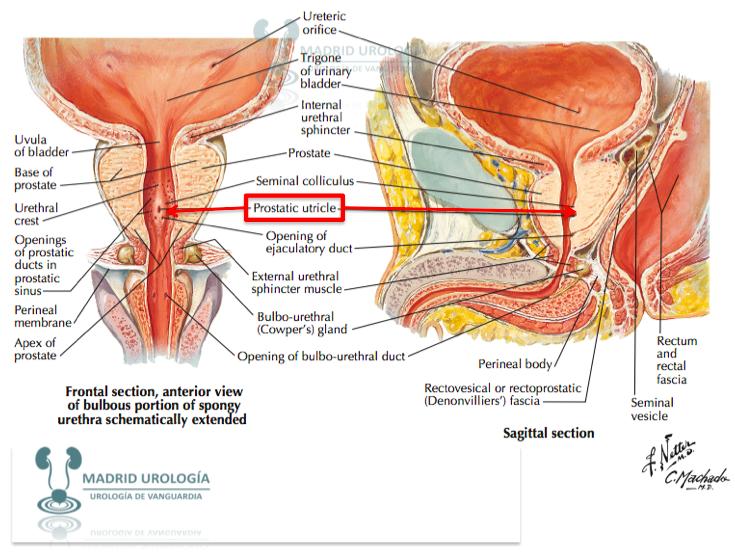 Urología Peruana: Dr. Susaníbar: Tratamiento del cáncer de la vejiga