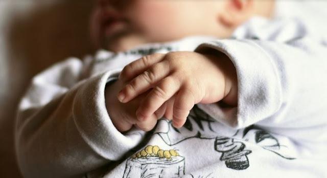 Bunda, Ini Dia Cara Menghilangkan Biang Keringat pada Bayi