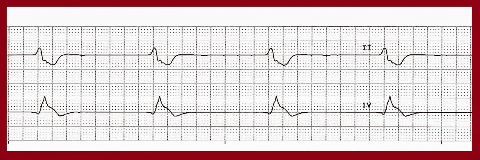Heart rhythm strip practice