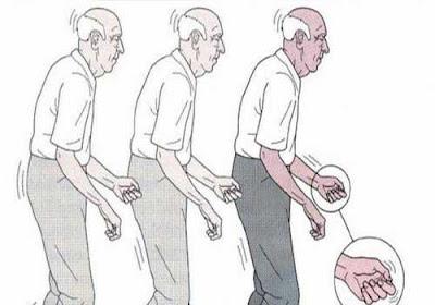 Bệnh Parkinson