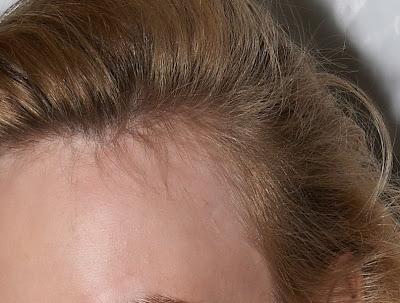 wypadanie włosów na skroniach