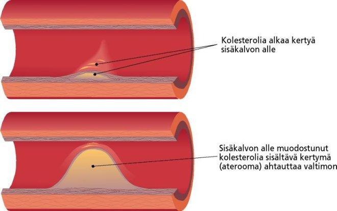 Korkea Kolesteroli Nuorella