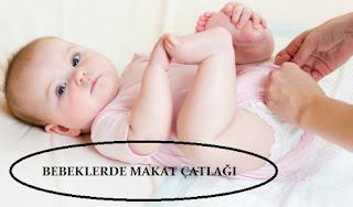 Bebeklerde Makat Çatlağı