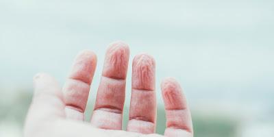 Banyodan Sonra Neden Deri Buruşur, Parmak Uçları, Neden Parmaklarımız Buruşur, Neden Deri Buruşur