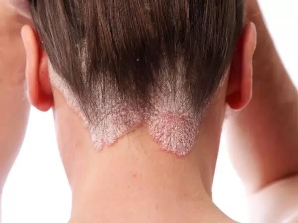 Những dấu hiệu nhận biết và triệu chứng bệnh vẩy nến thường gặp