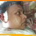 सरकारी जमीन पर रास्ते का विवाद: दो पक्षों के बीच जमकर हुई मार-पीट में एक की स्थिति गंभीर