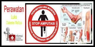 Wirid al-Rahman Ampuh menyembuhkan Penyakit Diabetes Melitus