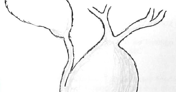 Radiology Lecture Notes: Choledochal cysts