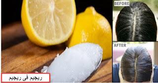 علاج الشعر بالليمون