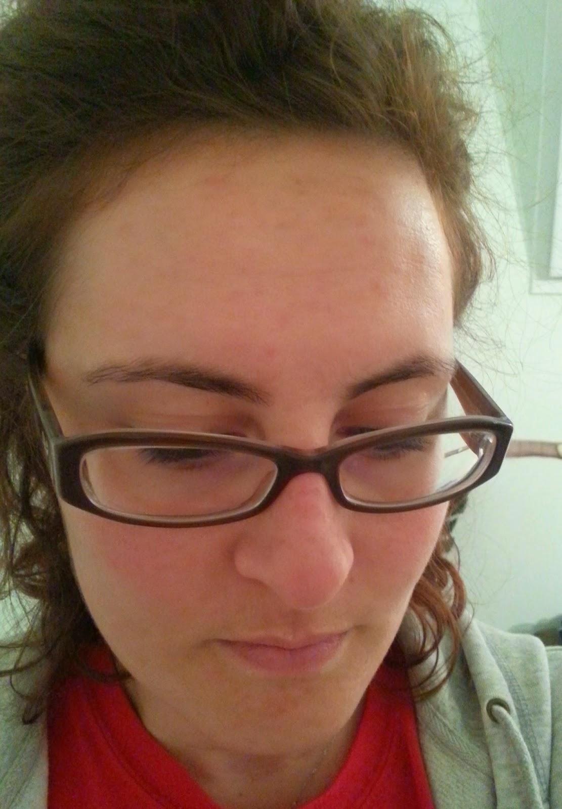 La photothérapie des taches de rousseur le prix