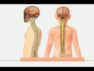مرض ms وعلاجه احدث علاج للتصلب اللويحي المتعدد 2019