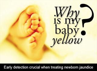 Breastmilk Jaundice: Bayi Demam Kuning Sebab Susu Ibu?