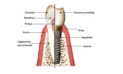 ¿Cómo es la cirugía de implantes dentales?